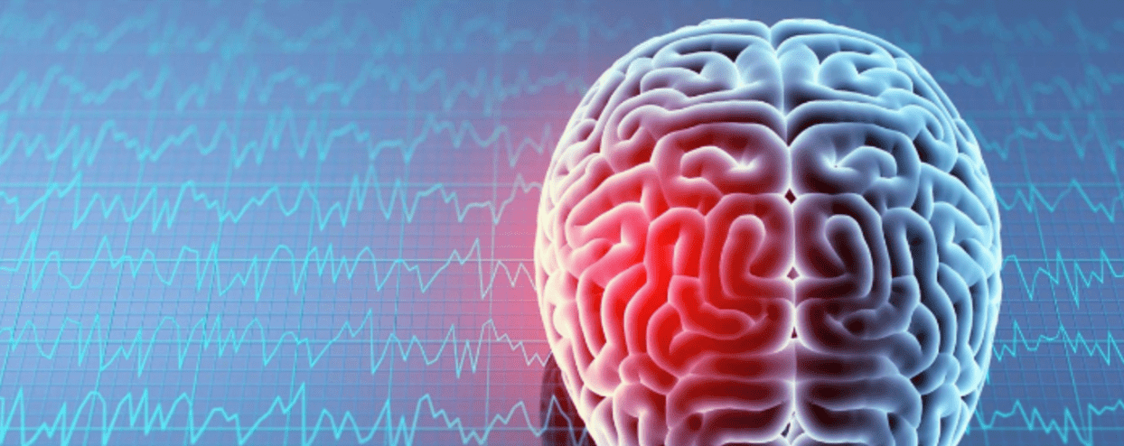 Living with a Brain Injury: What to Expect