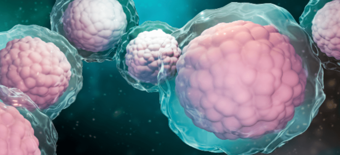 Could Stem Cell Therapy Be a Breakthrough Against MS?