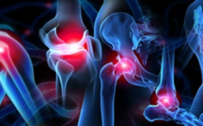 Can Stem Cells Help Manage Chronic Orthopedic Problems?