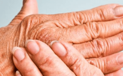 Stem Cell Therapy Can Help to Treat Rheumatoid Arthritis