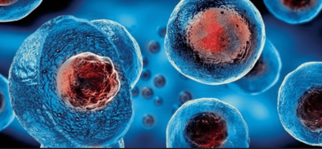 Stem Cell Therapy For Amyotrophic Lateral Sclerosis